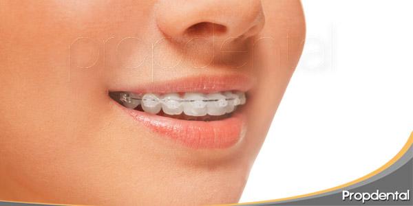 la-ortodoncia-del-presente-que-tratamientos-hay