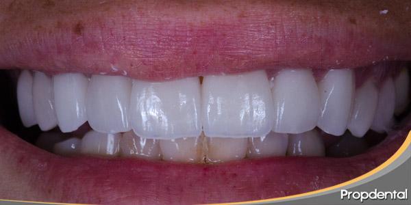 Estética-dental,-todo-un-arte