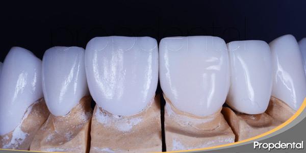 Estética-dental-tratamientos-insignia