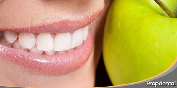 Implantes-dentales-tecnologia-All-on-four