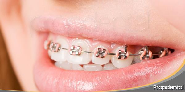 La-importancia-de-la-higiene-con-ortodoncia