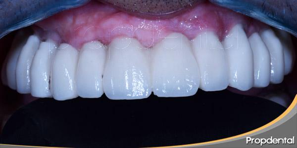 dentaduras-implantosoportadas-un-cambio-decisivo