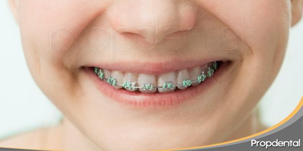 La-importancia-de-la-ortodoncia