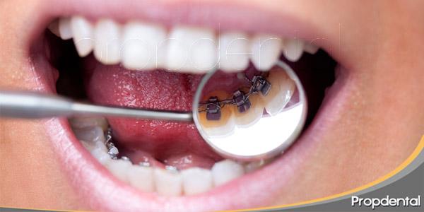 Las-claves-de-la-ortodoncia-lingual