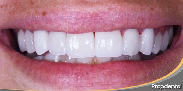 Ortodoncia-e-inserción-de-carillas-de-porcelana