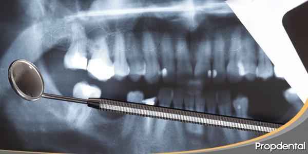 Son-seguras-las-radiografías-dentales