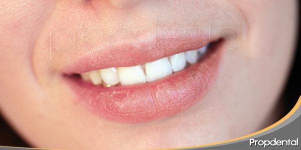 Xerostomía-el-síndrome-de-la-boca-seca