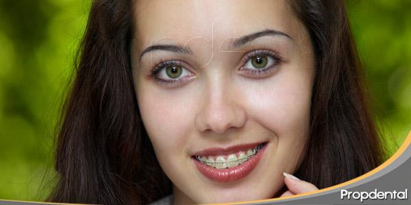 Y-después-de-la-ortodoncia-qué