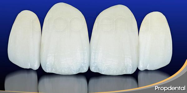 3-tratamientos-estrella-en-la-odontologia-estetica