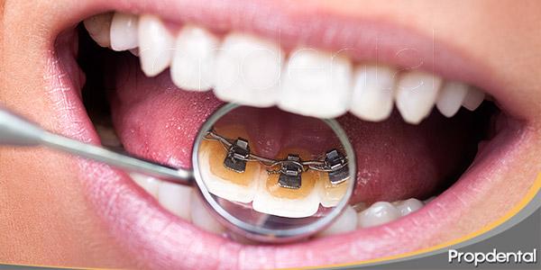 5-ventajas-de-la-ortodoncia-lingual