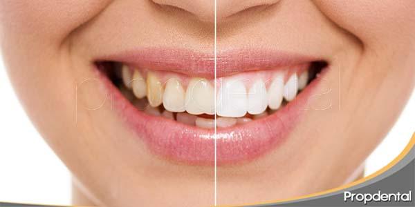Blanqueamiento dental mediante fotoactivación