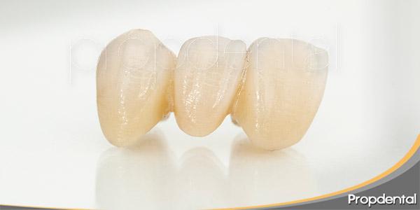 coronas-y-puentes-dentales-el-cambio-decisivo