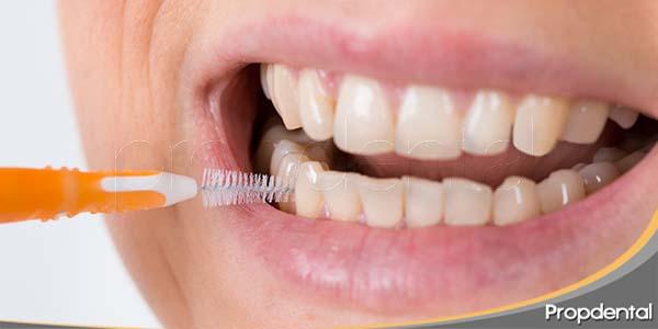 5-consejos-para-una-buena-higiene-interproximal