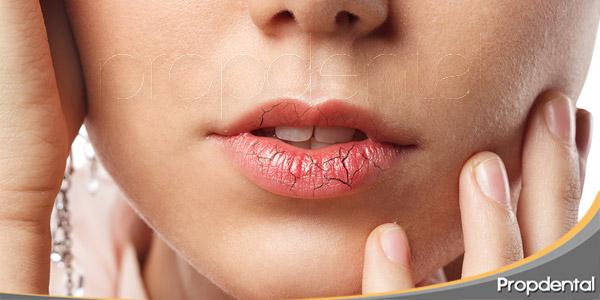 particularidades-de-la-sequedad-bucal