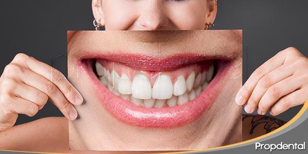 que-es-la-dismorfia-dental
