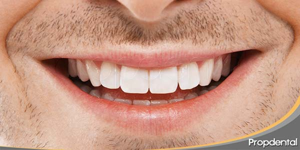 trucos-para-mantener-una-buena-salud-oral