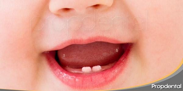 consejos-para-cuidar-los-primeros-dientes-del-bebé