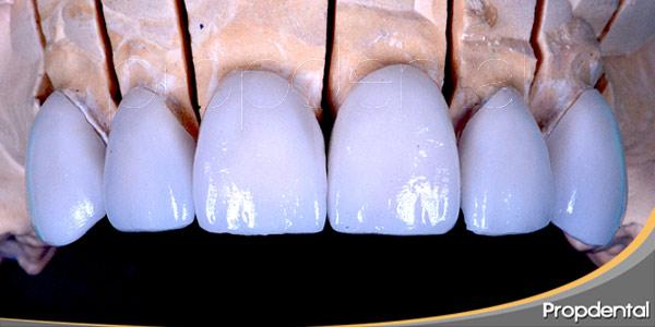diferencias-entre-carillas-y-coronas-dentales