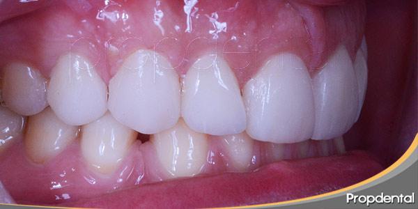 puedo-eliminar-las-manchas-dentales