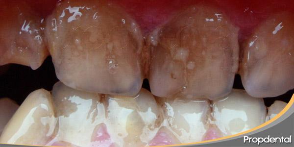 tipos-de-manchas-dentales