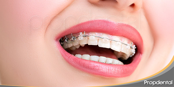 tratamientos-estrella-en-la-ortodoncia-estética