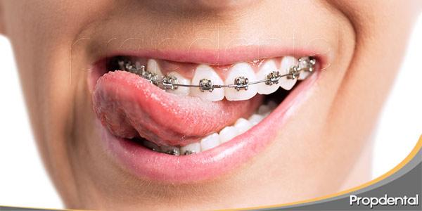 la-alimentación-con-ortodoncia