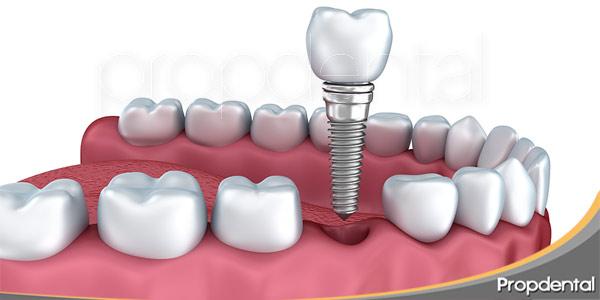 qué-hacer-ante-la-pérdida-de-un-diente