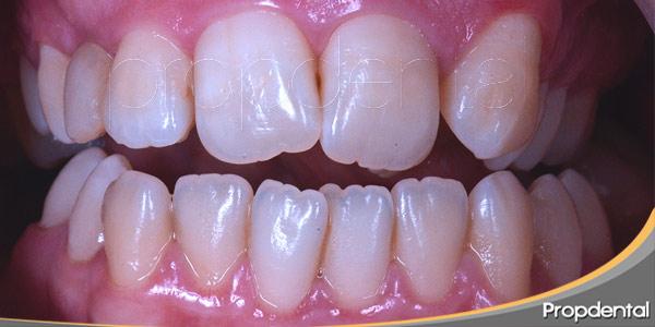 qué-hacer-si-tengo-los-dientes-torcidos
