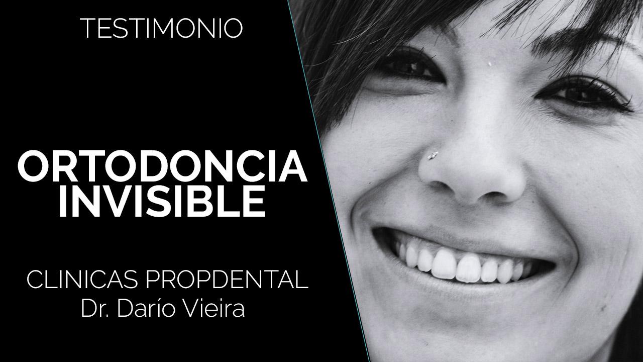 testimonio ortodoncia invisible