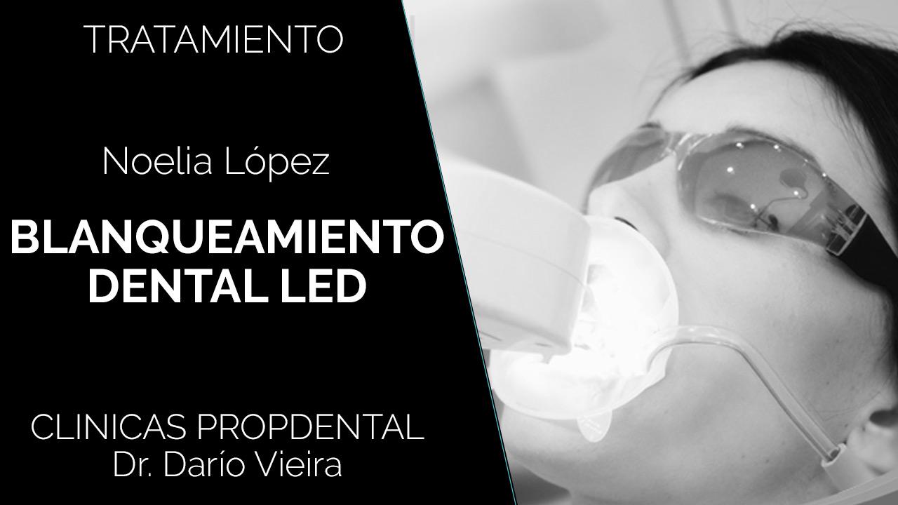 Testimonio blanqueamiento-dental