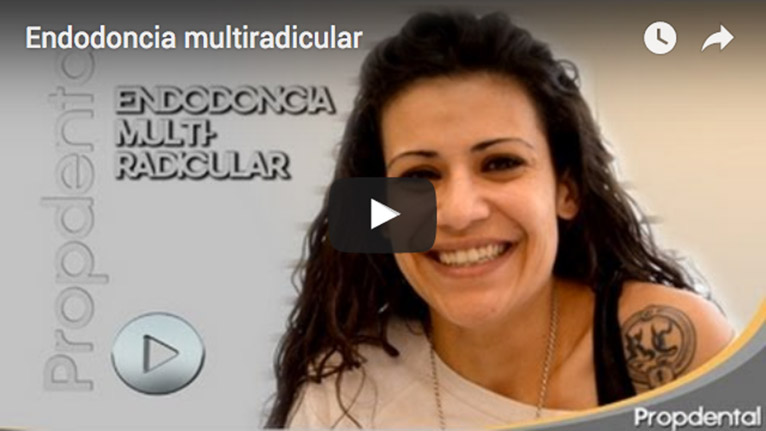 endodoncia multiradicular