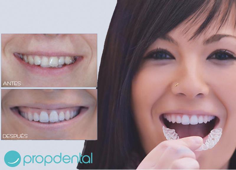tratamiento ortodoncia invisalign