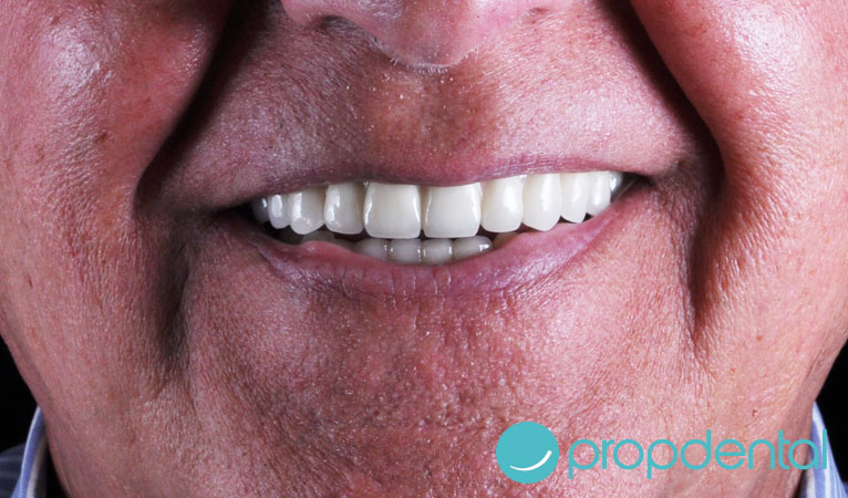 Adaptándote a una prótesis dental completa