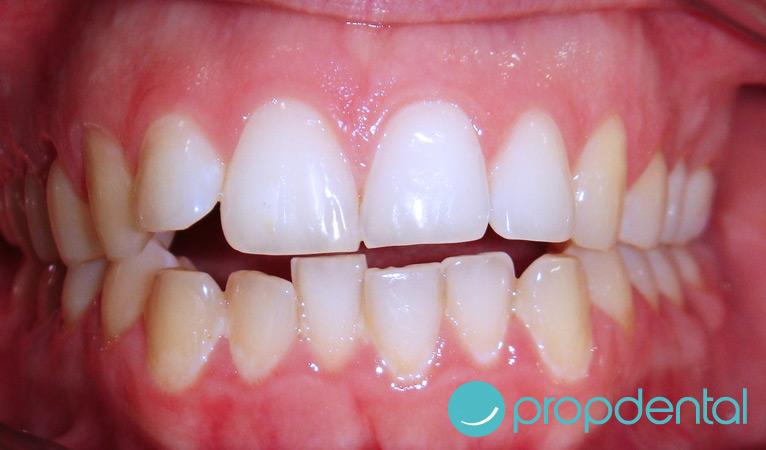 caso de ortodoncia con brackets-antes
