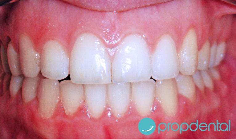 caso de ortodoncia con brackets despues