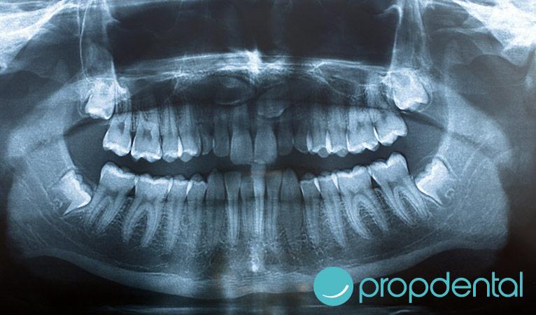 Es realmente peligrosa la radiografía dental en el embarazo