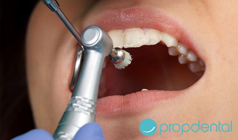 Las claves de la odontologia preventiva