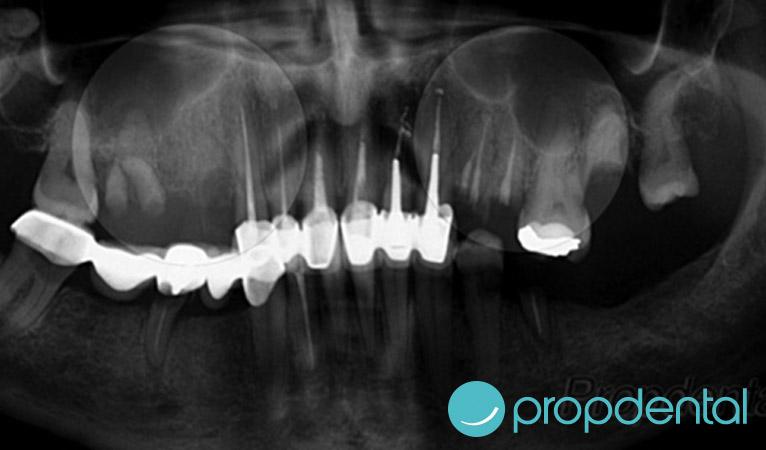 antes-elevacion-de-seno-maxilar