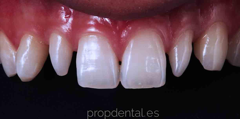 caso carillas dentales