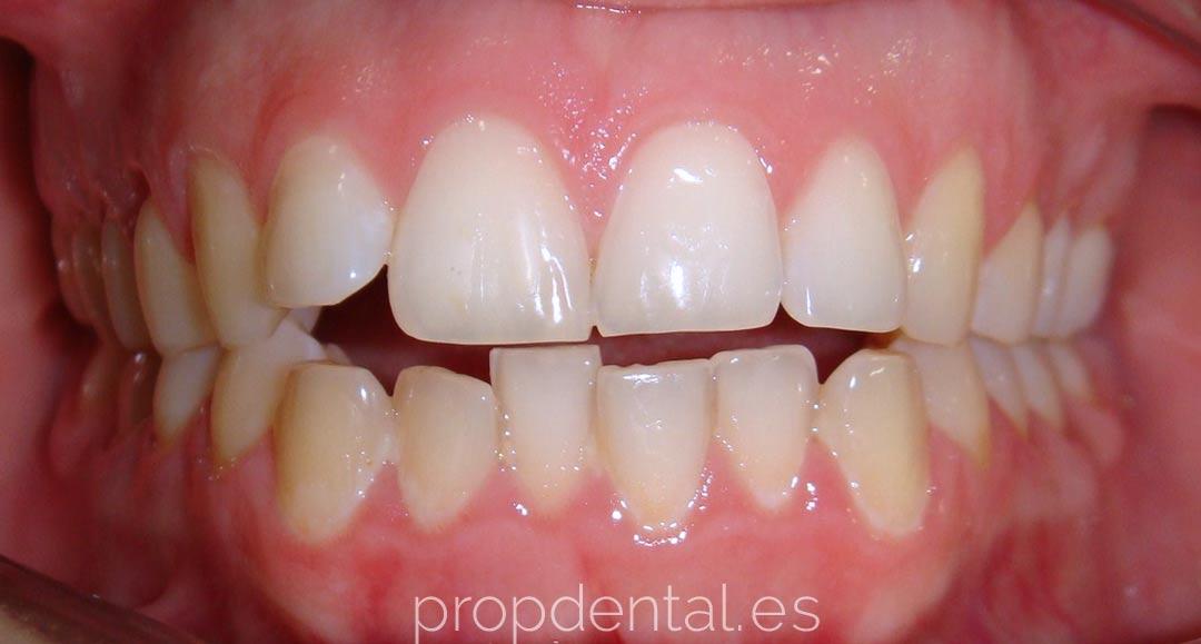 caso de ortodoncia con brackets