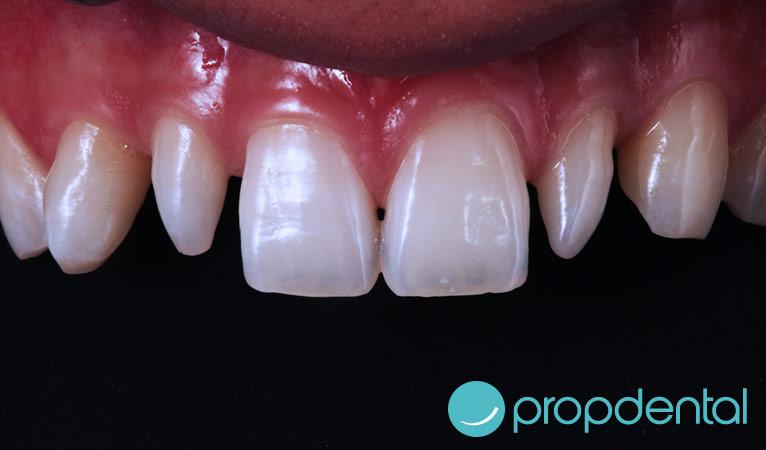 caso de carillas dentales antes