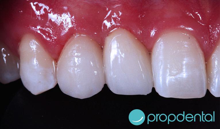 caso de carillas dentales superior