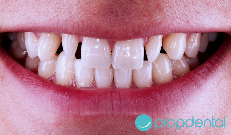 caso de carillas dentales