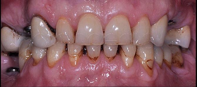 caso implantes dentales