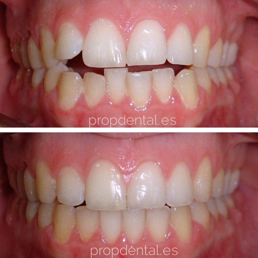 caso ortodoncia brackets evolución