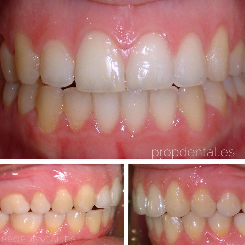 caso ortodoncia brackets final