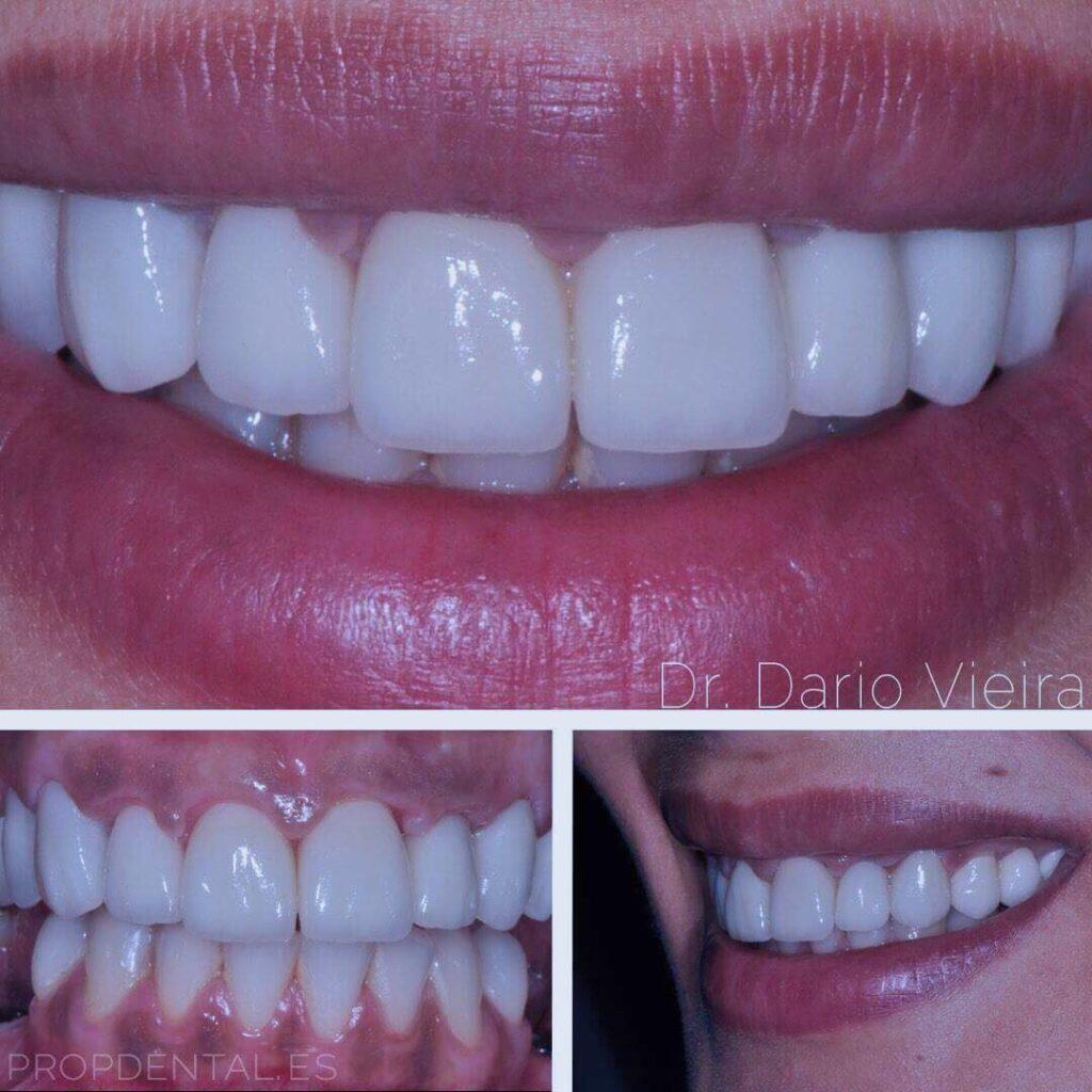 dentistas especialistas en dientes de porcelana