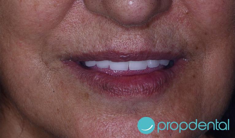 dientes-fijos-circonio