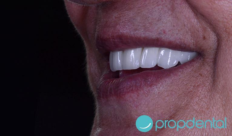 dientes-fijos-definitivos