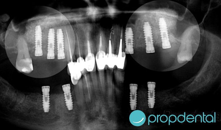 elevacion-para-implantes